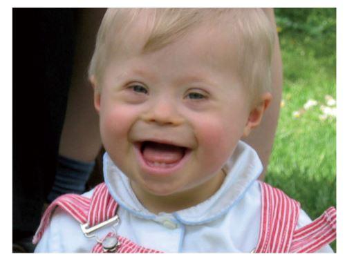 Troubles sur le remboursement des soins destinés aux enfants handicapés – Déremboursement ou parcours du combattant?